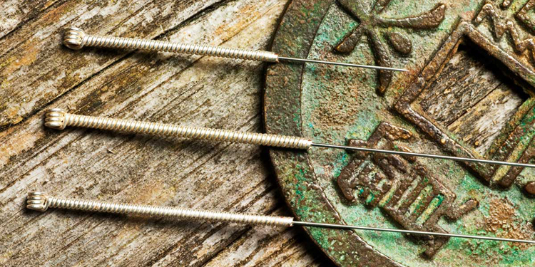 Chinese Medicine and Benefits of Acupuncture